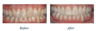 Before and after photos showing orthodontic dentistry
